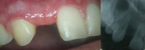 avant-implant