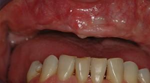 cas3-avant-implant