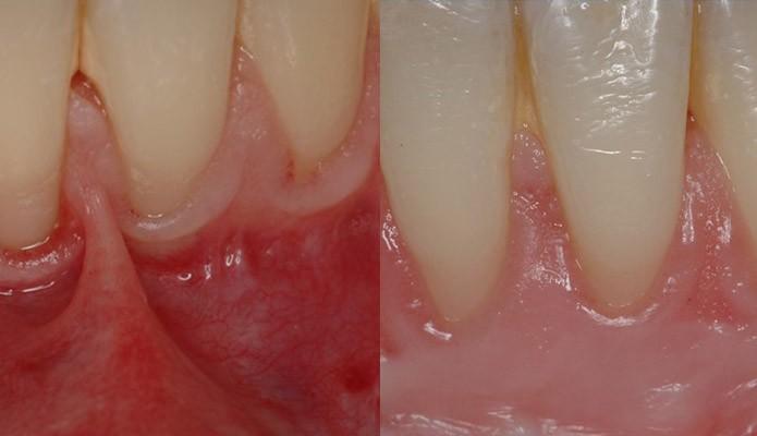 dents-dechausses-av-ap1