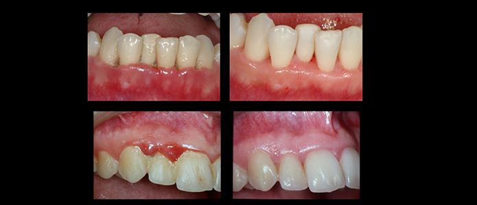 traitements-parodontologie(4)
