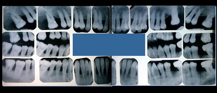 traitements-parodontologie(5)