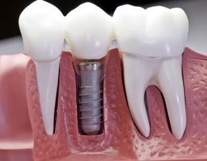 remplacement-de-dent