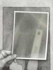 10.implant