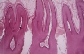 ligament-parodontal