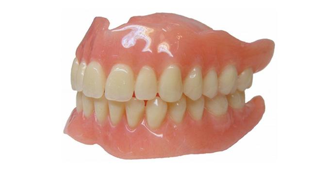 appareil-dentaire-du-haut