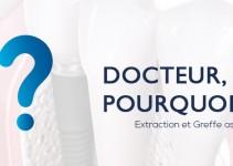 docteur-pourquoi-extraction-greffe-osseuse