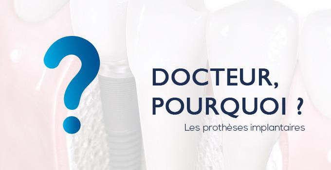 docteur-pourquoi-protheses-implantaires