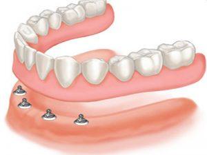 implant-prothese-amovible-dentaire-mattout(2)