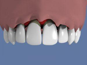 prix-implant-dentaire-mattout(6)