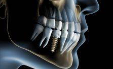 implantologie-marseille-9eme