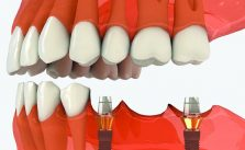 implantologie-marseille-12eme