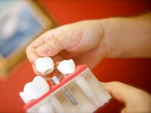 implantologie-marseille-15eme