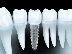 implantologie-marseille-6eme