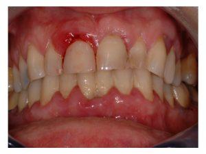 dechaussement-des-dents-marseille