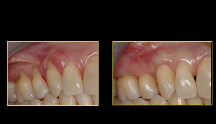greffe gingivale 2