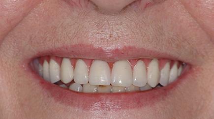cas3-apres-implant