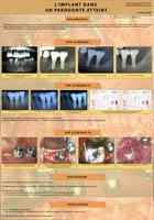 implantologie