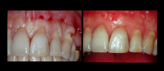traitements-parodontologie(3)