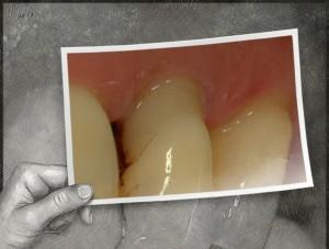 2.parodontite