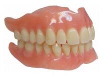appareil-dentaire