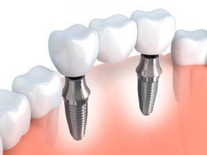 Implant dentaire marseille