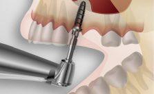 implantologie-marseille-16eme