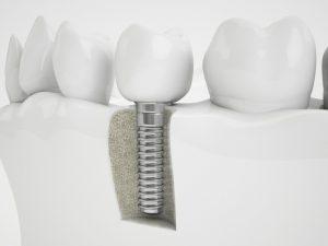 implantologie-marseille-13eme
