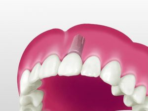 implantologie-marseille-11eme