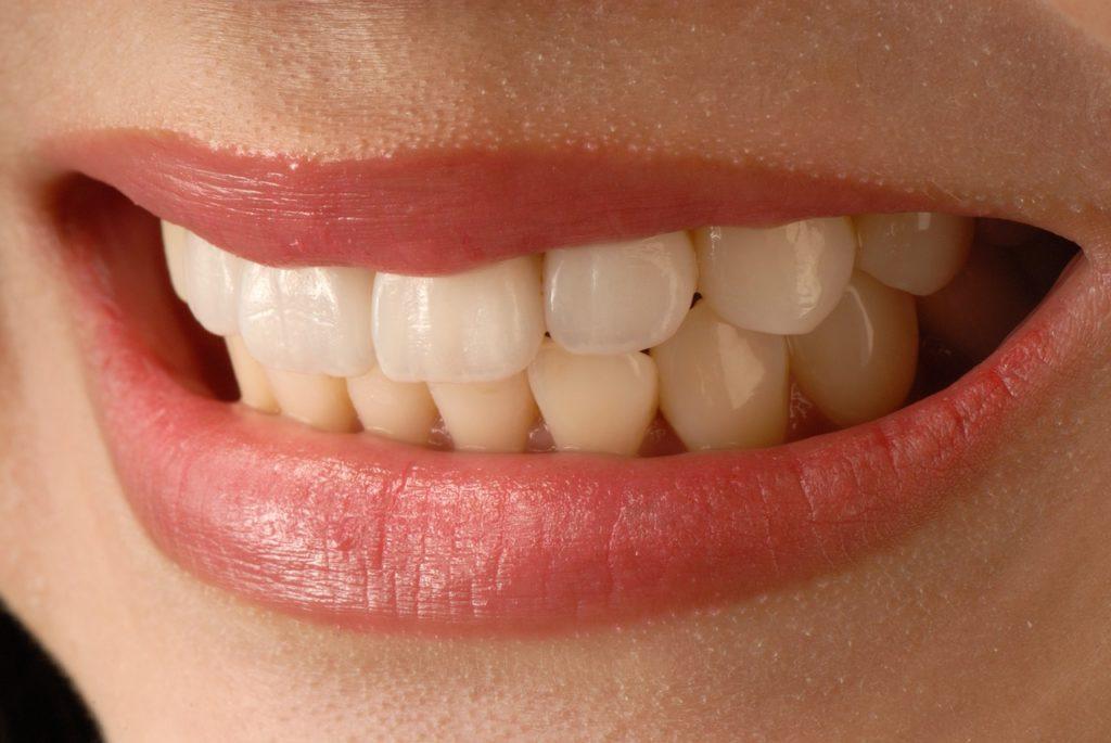 esthetique-dentaire